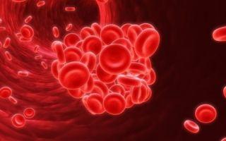 Почему тромб оторвался? Причины, симптомы, диагностика и лечение