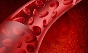 Уплотнения аорты: что это значит и чем опасно?