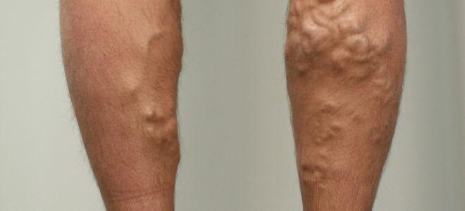 Варикозная болезнь вен нижних конечностей: стадии, причины, симптомы и лечение