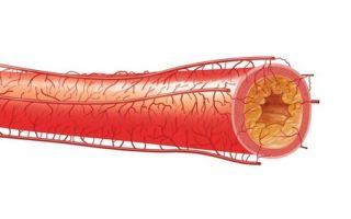 Атеросклероз сердца: лечение, причины и симптомы заболевания
