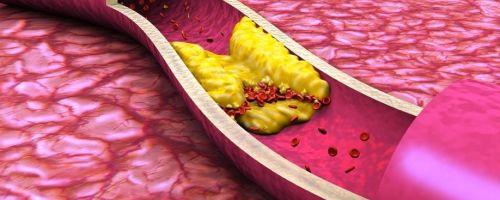 Атеросклероз аорты сердца: причины, симптомы, лечение народными средствами и медикаментами