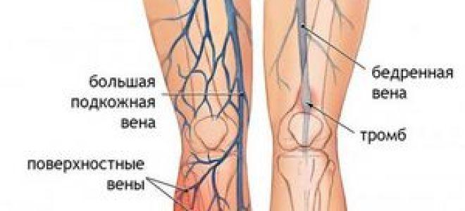 Основные методики лечения тромбофлебита различной этиологии