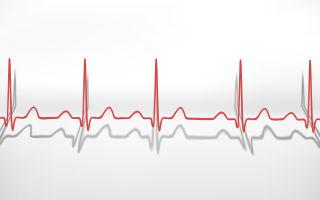 Как безопасно повысить пульс: советы врачей