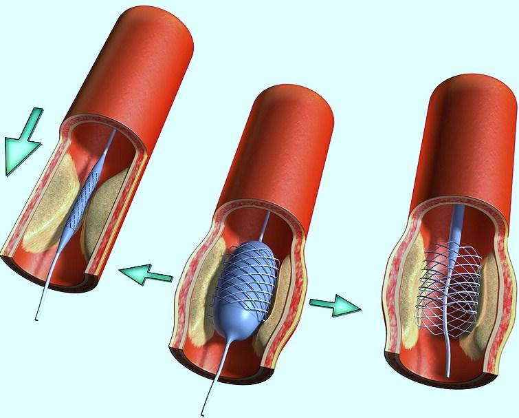 Изображение - Почистить сосуды от артериального давления chistka-sosudov_12