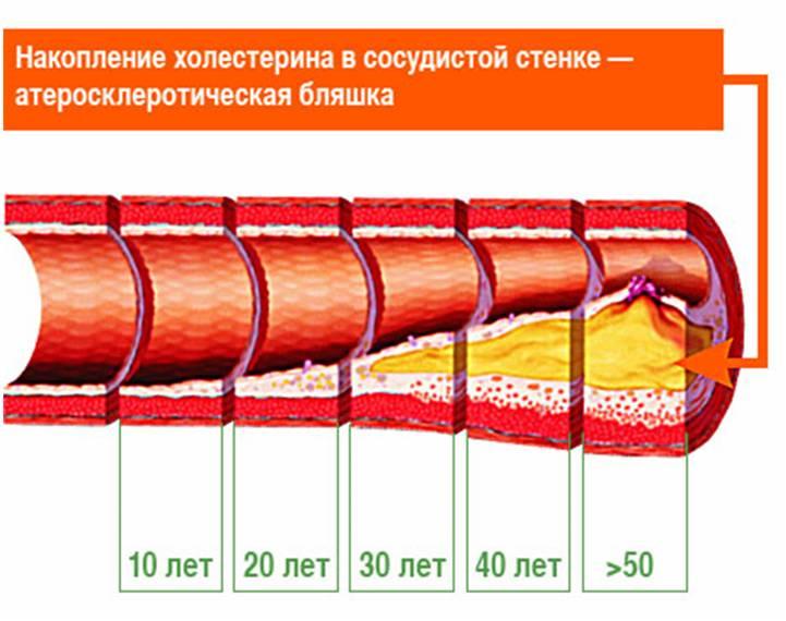 Изображение - Почистить сосуды от артериального давления chistka-sosudov_9
