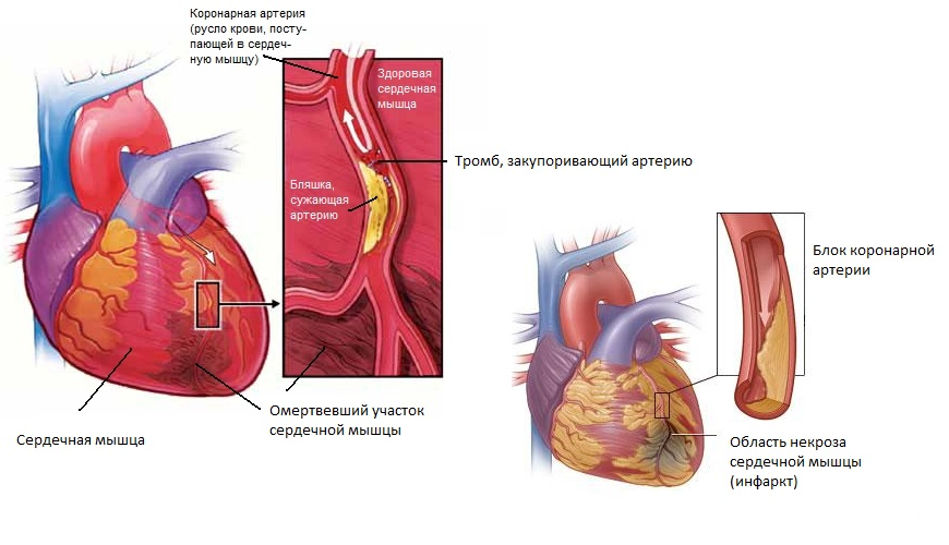 Инфаркт миокарда этиология патогенез диагностика клиника лечение