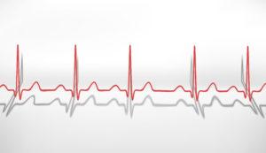 Как увеличить пульс сердца