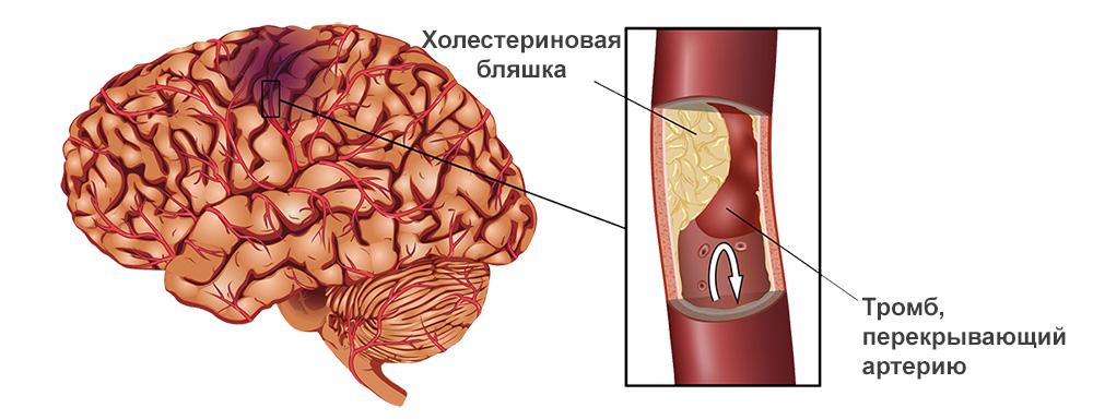 Как проявляется микроинсульт головного мозга
