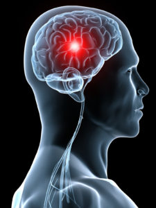 priznaki mikroinsulta 2 1 - Los síntomas de micro accidente cerebrovascular son los primeros signos en mujeres mayores.