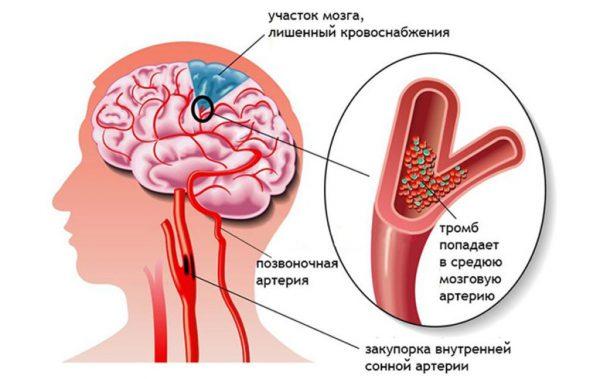 Признаки микроинсульта и его симптомы у мужчин и женщин