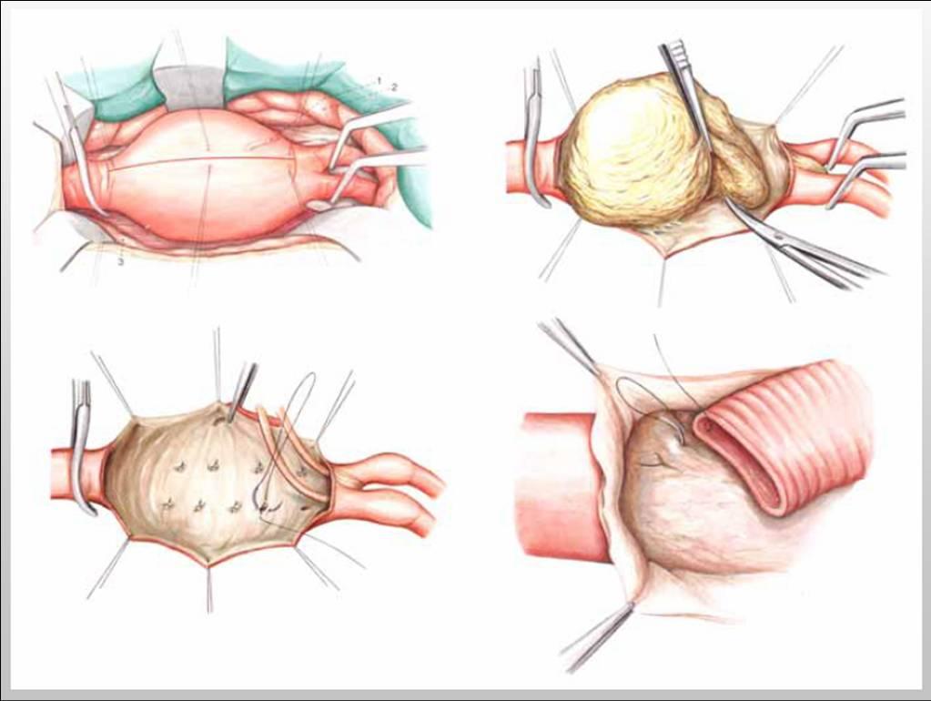 Аневризма брюшной аорты: причины, симптомы и лечение