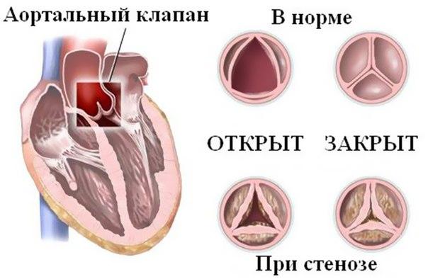 Порок первого клапана сердца
