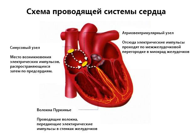 aritmiya eto 3 - Troubles du rythme cardiaque