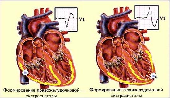 Как лечить экстрасистолию сердца