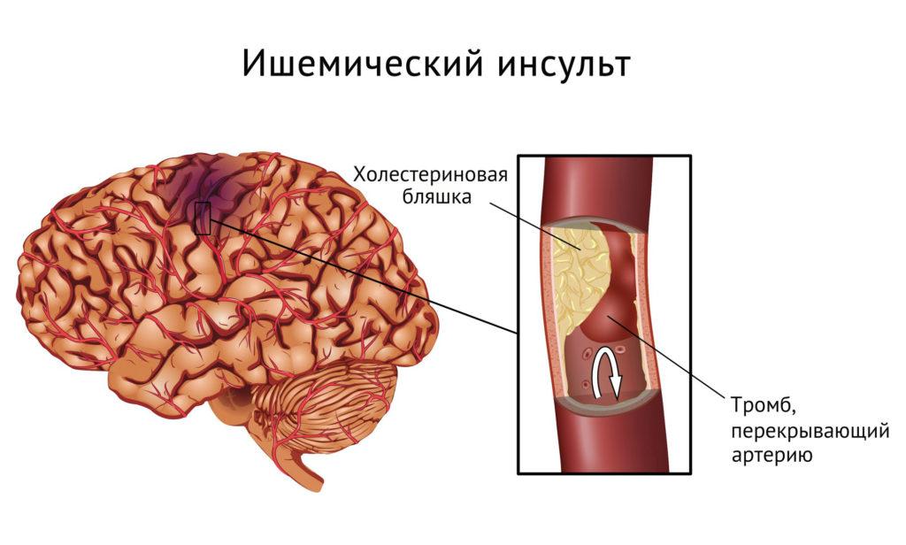 Ишемический инсульт причины возникновения