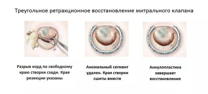 Увеличение митрального клапана