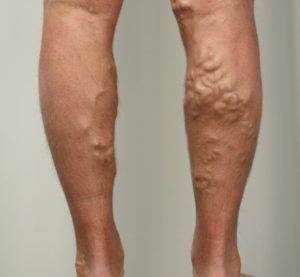 Симптомы и лечение сосудов нижних конечностей