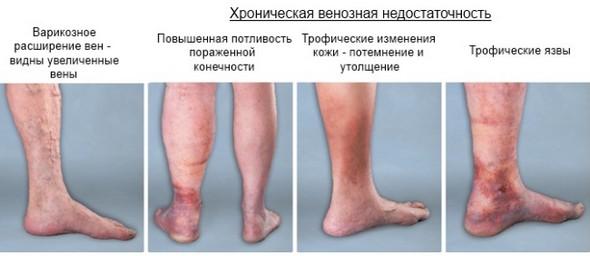 Клапанная недостаточность бпв нижних конечностей лечение: диагноз, лекарства, отзывы, препараты