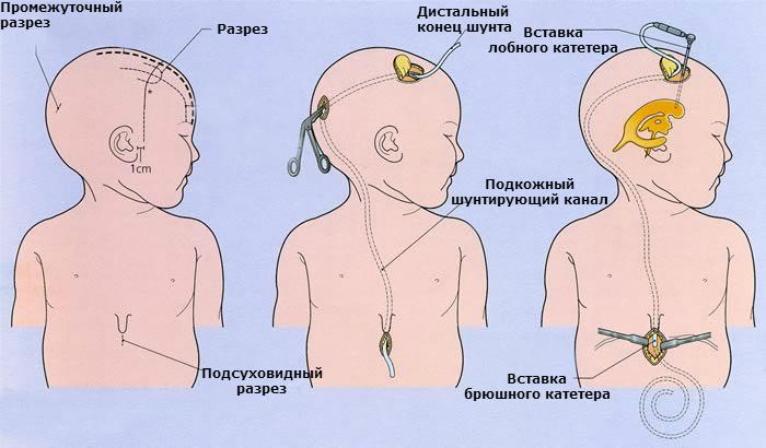 Внутричерепное давление у ребенка: симптомы и лечение