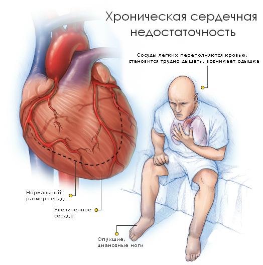 Что означает сердечная недостаточность